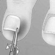 лечение вросшего ногтя, причины появления